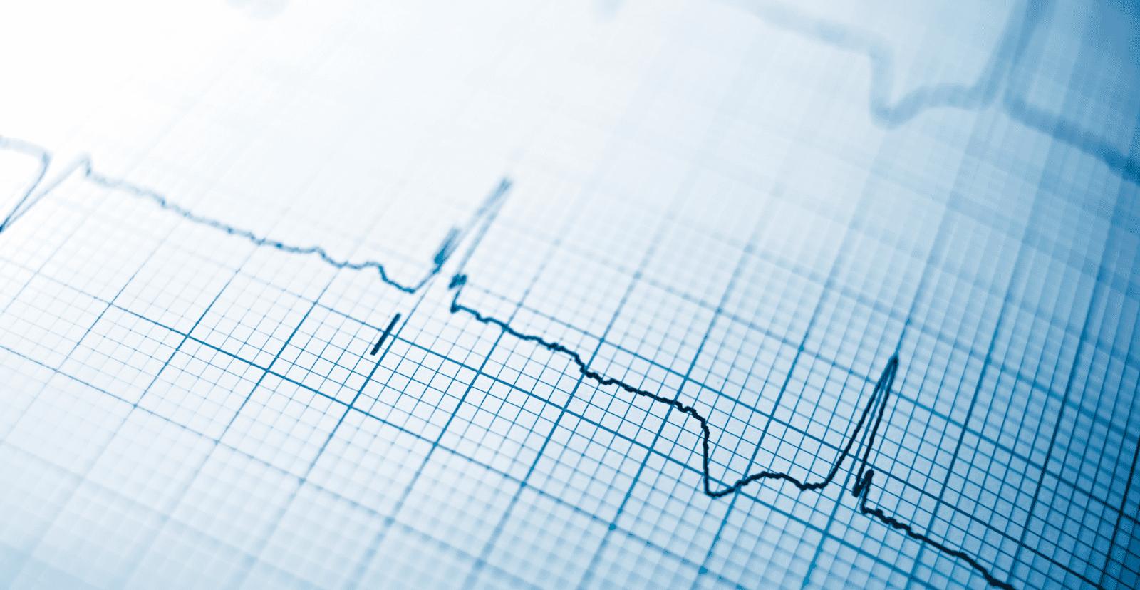 heartbeat-image